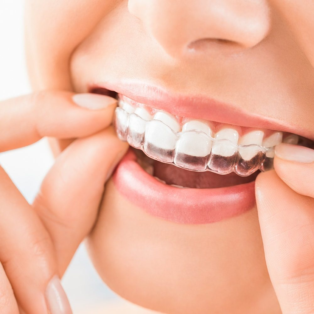 Woman wearing orthodontic silicone trainer. Invisible braces aligner. Mobile orthodontic appliance for dental correction.